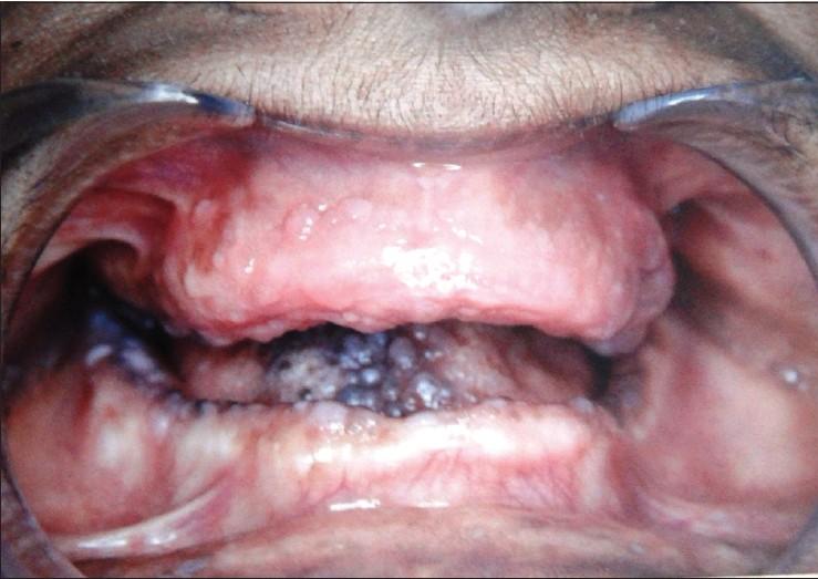 Sindrome de bannayan-riley-ruvalcaba syndrome dating