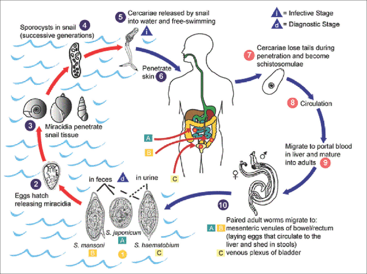 Schistosomiasis: A neglected tropical disease of poverty: A