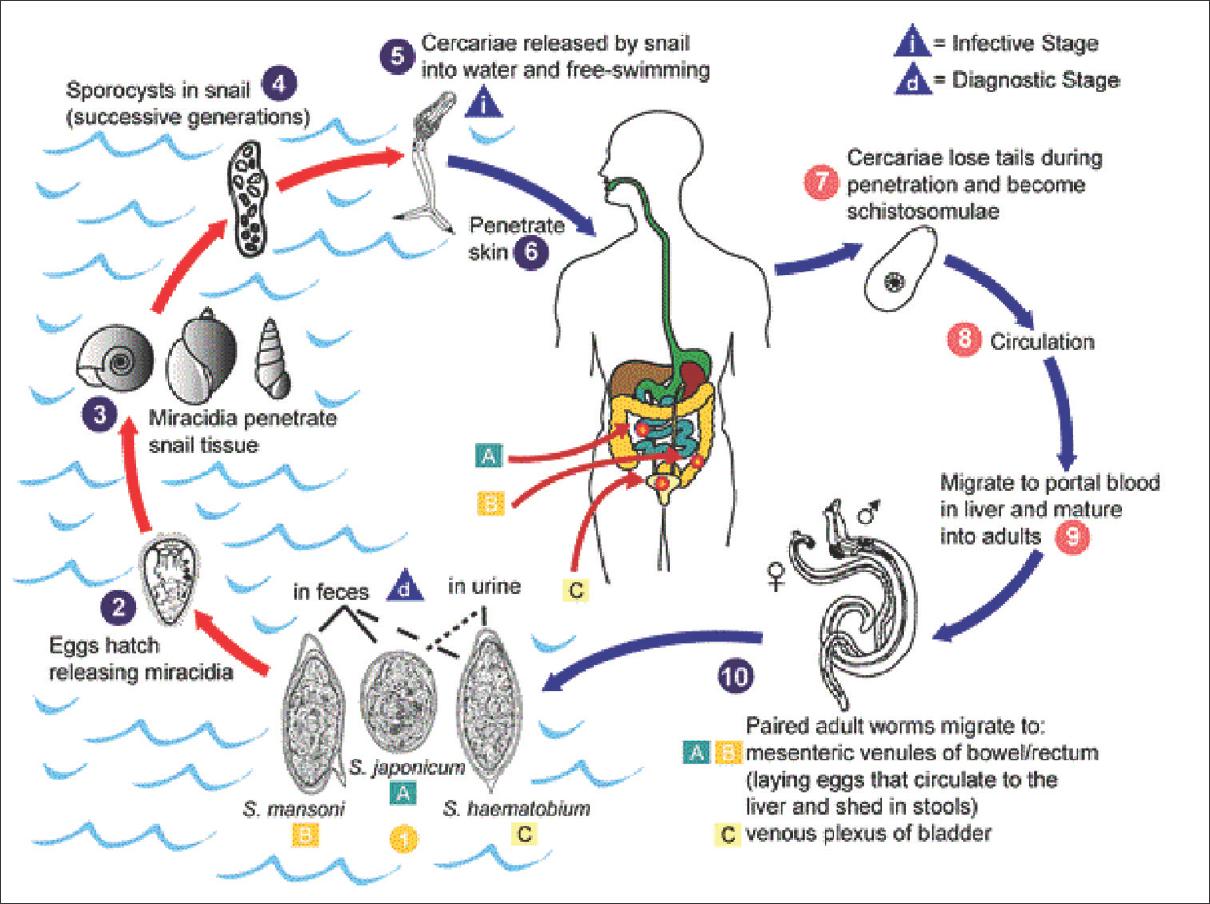 schistosomiasis work up