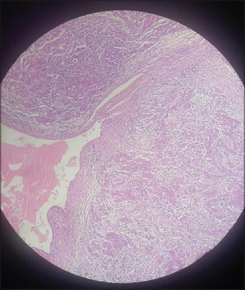 Primary fallopian tube carcinoma: A case of rare malignancy