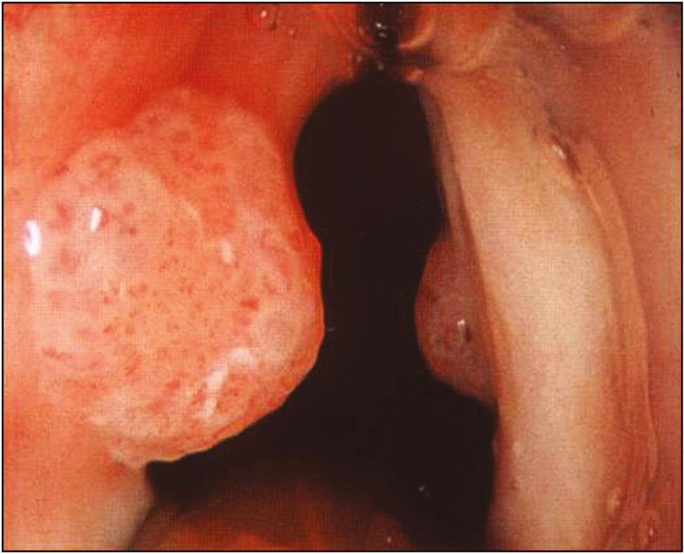 Case laryngeal papilloma - Squamous cell papilloma laryngeal papillomatosis